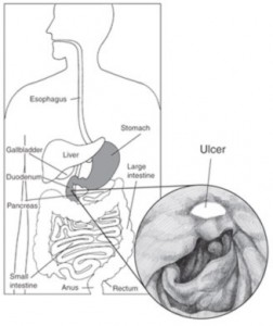 H. pylori bacteria can cause peptic ulcers—sores on the lining of the stomach or duodenum.